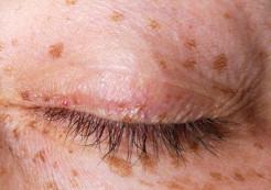 Unguento macchie scure su pelle